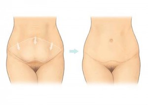 abdominoplasty-a5